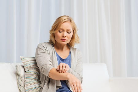 allergic reaction: people, healthcare, dermatology, allergy and health problem concept - unhappy woman suffering from hand inch at home