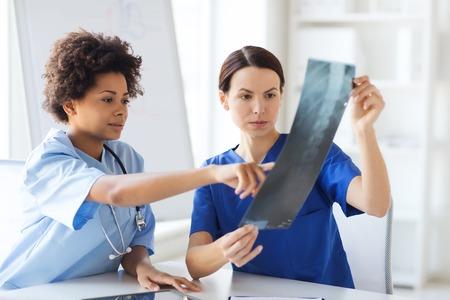 放射線、手術、人々 および医学のコンセプト - 女性医師に調査および議論する病院での画像を x 線します。