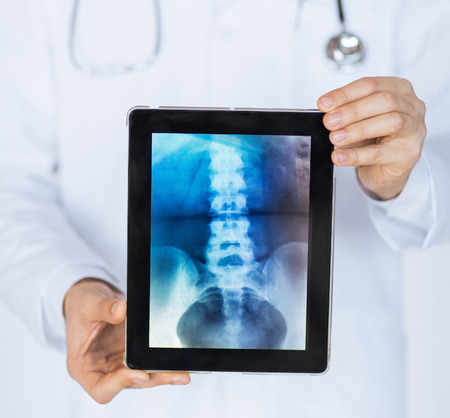 new medicine: close up of male doctor holding tablet pc with x-ray