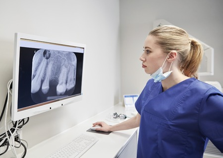 stomatological: people, medicine, stomatology, technology and health care concept - female dentist looking to x-ray scan on monitor at dental clinic
