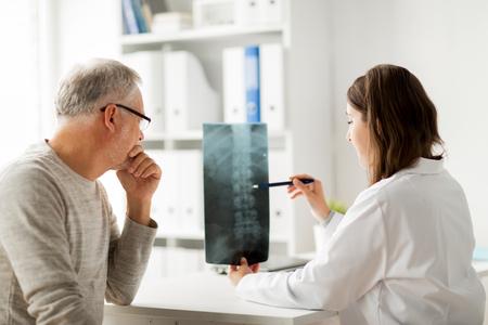 geneeskunde, gezondheidszorg, chirurgie, radiologie en mensen concept - arts met x-ray van de wervelkolom aan senior man in het ziekenhuis