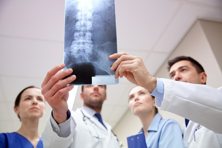 surgeons: surgery, people, healthcare and medicine concept - group of medics with spine x-ray scan at hospital Stock Photo
