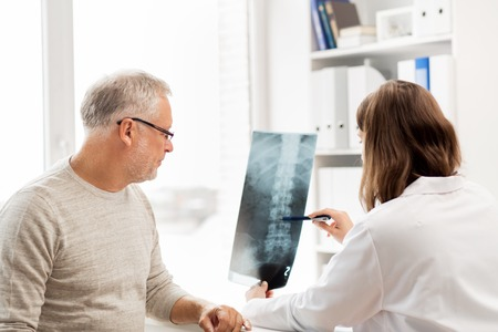 medics: medicine, healthcare, surgery, radiology and people concept - doctor showing x-ray of spine to senior man at hospital