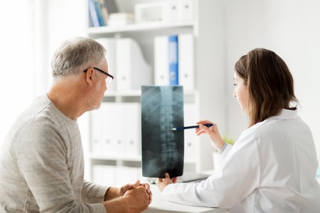 mujeres ancianas: medicina, atención sanitaria, cirugía, radiología y el concepto de la gente - doctor que muestra la radiografía de la columna vertebral para hombre mayor en el hospital Foto de archivo