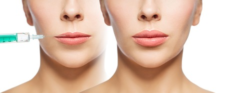 fillers: woman before and after lip fillers injection
