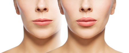 woman before and after lip fillers Foto de archivo