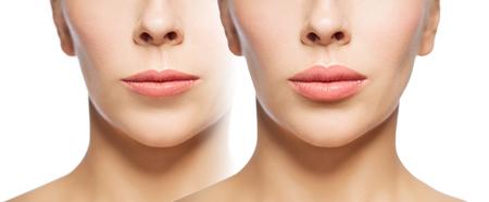 vrouw voor en na de lip vulstoffen