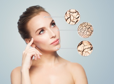 people, dehydration, skincare and beauty concept - face of beautiful woman with damaged dry skin samples Stock Photo