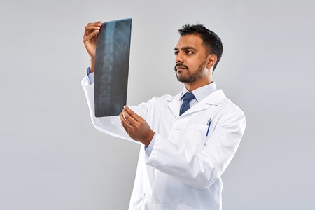 indian doctor looking at spine x-ray