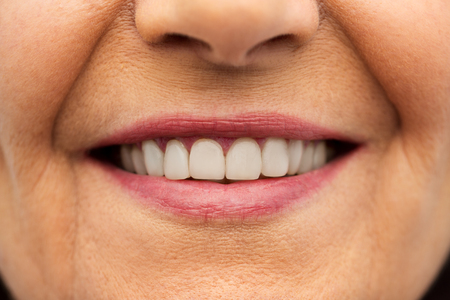 close up of senior woman smiling mouth and teeth
