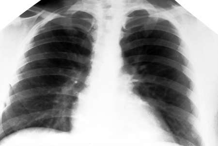 pulmon sano: Foto R�ntgen Inspecci�n Foto de archivo