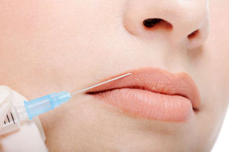 Cosmetic injection in the female lips - fragment of face close-up photo