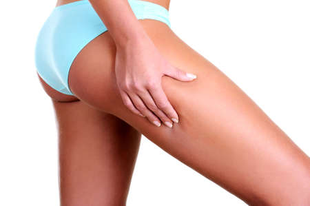 cellulite: La mujer aprieta una piel sobre una cadera para la comprobaci�n de una celulitis - vista de perfil