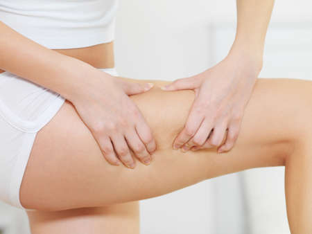 cellulite: Female squeezes cellulite skin on her legs - close-up fragment