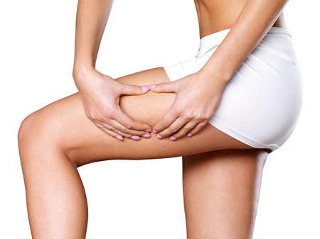 mujeres gordas: Mujer aprieta la piel celulitis en sus piernas - close-up shot sobre fondo blanco Foto de archivo