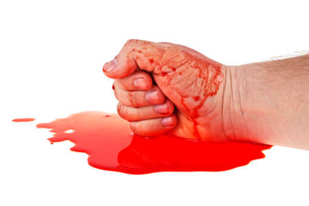 Bloody hand on a white background, close up
