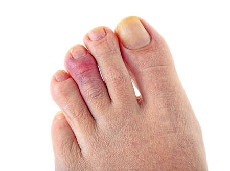 Female foot with a broken finger, white background.