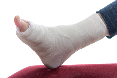 accident patient: Close up of a  Plaster leg cast and toes Stock Photo