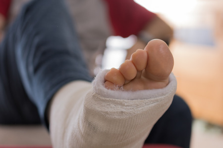 Young man with a broken ankle and a white cast on his leg, sitting on a couch (bokeh)