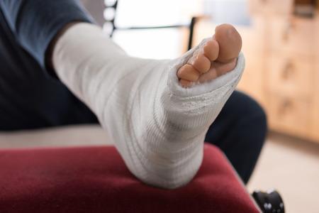실행중인 부상 후 젊은 남자의 석고 다리 캐스트와 발가락 닫습니다