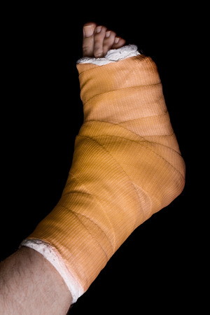 plaster leg cast: Orange plaster and fiberglass leg cast worn by a young man(isolated on black) Stock Photo