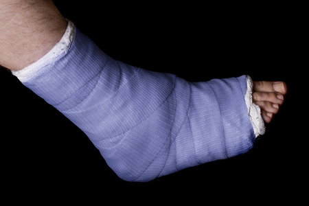 plaster leg cast: Blue plaster and fiberglass leg cast worn by a young man(isolated on black)