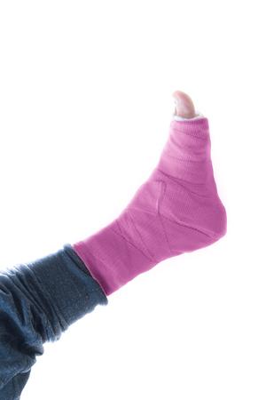 fibra de vidrio: de fibra de vidrio de color rosa brillante y yeso en la pierna de yeso (aislado en blanco)