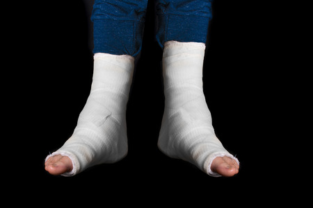 dual: Young man with two broken ankles and dual white casts on his legs  (isolated on black) Stock Photo