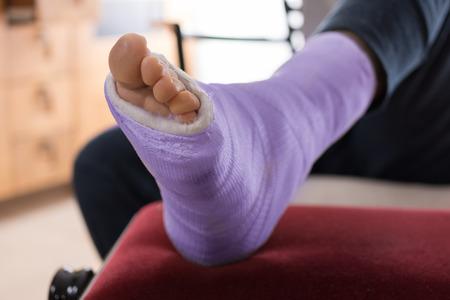 Zbliżenie młodego człowieka fioletowy niebieski laminat / gips nogi i palce po uruchomionego kontuzji
