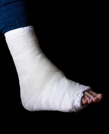 fiberglass: White plaster and fiberglass leg cast worn by a young man(isolated on black)