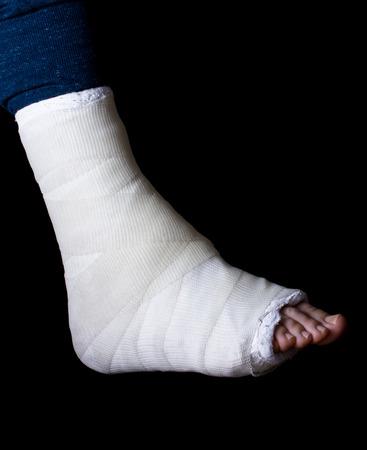 fibra de vidrio: yeso y fibra de vidrio blanca pierna emitidos usado por un hombre joven (aislado en negro)