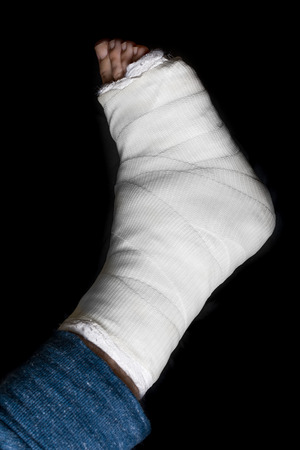 plaster leg cast: White plaster and fiberglass leg cast worn by a young man(isolated on black)