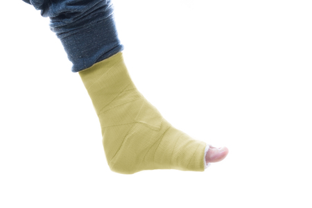 plaster leg cast: Yellow fiberglass and plaster leg cast worn by a young man (isolated on white) Stock Photo