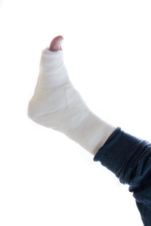fibra de vidrio: yeso y fibra de vidrio blanca pierna emitidos usado por un hombre joven (aislado en blanco)