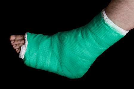 plaster leg cast: Green plaster and fiberglass leg cast worn by a young man(isolated on black)