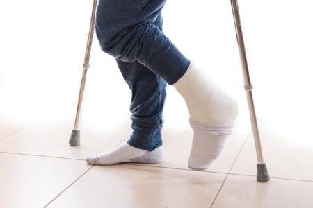 pierna rota: Hombre joven con un tobillo roto y un yeso en la pierna blanca con un calcetín para ayudar a mantener sus pies calientes, caminar con muletas (aislado en blanco)