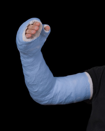 Close up of a young mans blue long arm plaster  fiberglass cast covering the wrist, arm, and elbow after a skating accident, isolated on black Stock Photo