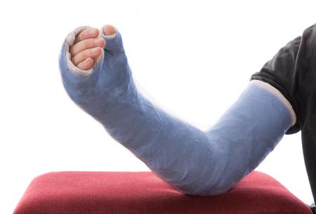 fibra de vidrio: Un azul largo brazo de yeso  fibra de vidrio fundido que cubre la muñeca, el brazo y el codo, que descansan sobre una otomana, aislado en blanco Foto de archivo