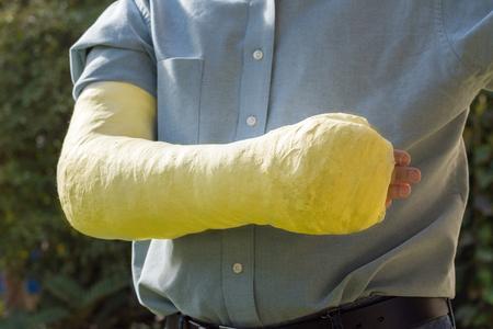 fibra de vidrio: Un brazo y el codo en un yeso de fibra de vidrio de color amarillo  cast usados ??por un joven de pie en un jardín Foto de archivo