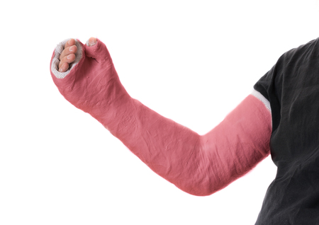 Close up of a young mans red long arm plaster  fiberglass cast covering the wrist, arm, and elbow after an accident, isolated on white