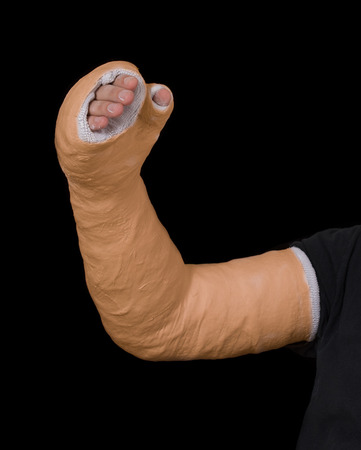 Close up of a young mans orange long arm plaster  fiberglass cast covering the wrist, arm, and elbow after a skating accident, isolated on black