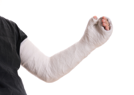 Close up of a young mans white long arm plaster  fiberglass cast covering the wrist, arm, and elbow after a skating accident, isolated on white