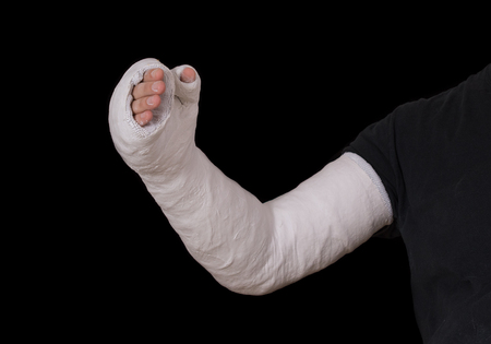 Close up of a young mans white long arm plaster  fiberglass cast covering the wrist, arm, and elbow after a skating accident, isolated on black