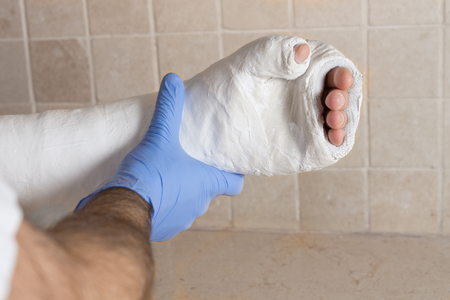 fibra de vidrio: técnico ortopédico que pone en un molde de fibra de vidrio  yeso en el brazo roto y fracturado de un joven después de una lesión. Cierre de la imagen muestra el elenco está aplicando en una clínica  hospital.
