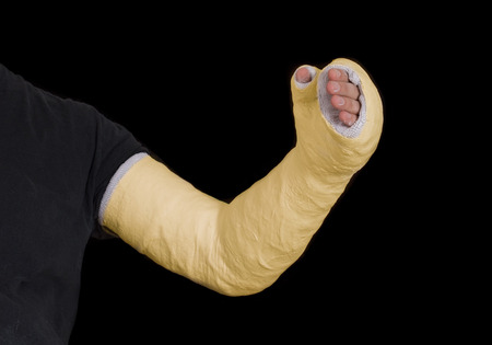 Close up of a yellow long arm plaster  fiberglass cast covering the wrist, arm, and elbow after a n accident, isolated on black