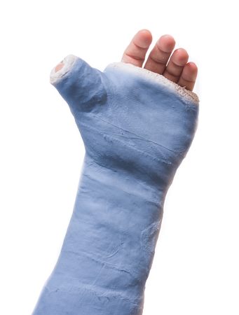 Close up of a blue arm plaster  fiberglass cast  with the thumb extended in a thumbs-up shape, isolated on white