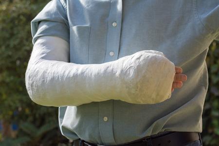 fibra de vidrio: Un brazo y el codo en un yeso de fibra de vidrio blanco  cast usados ??por un joven de pie en un jardín