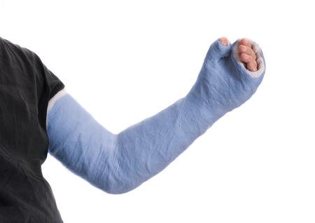fibra de vidrio: Cierre de azul del yeso de brazo largo de un joven  fibra de vidrio fundido que cubre la muñeca, el brazo y el codo después de un accidente, aislado en blanco