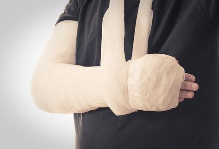 fibra de vidrio: yeso de brazo - de color blanco brillante elenco largo brazo en un cabestrillo para un roto el codo, el brazo o la muñeca. El brazo cubierto de yeso  yeso  fibra de vidrio. efecto retro de la vendimia.