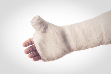 fibra de vidrio: Cerca de un brazo de yeso blanco  fibra de vidrio fundido con el pulgar extendido en forma de pulgar hacia arriba, aislado en blanco - efecto retro de la vendimia